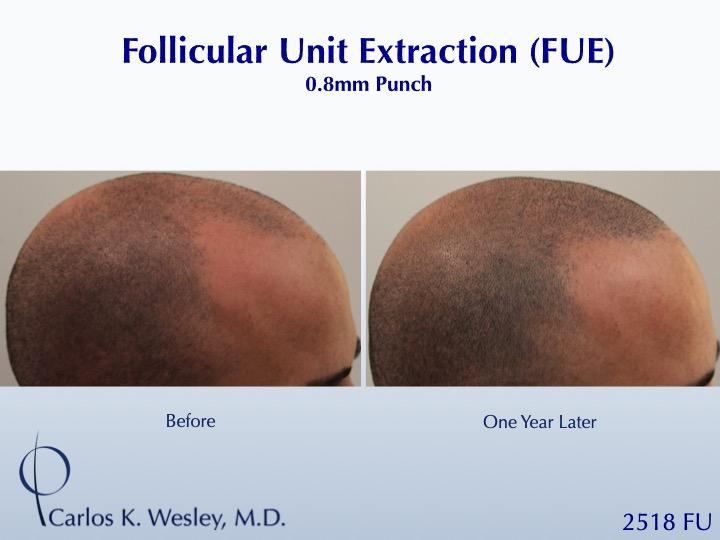 Dr Carlos Wesley Hair Transplant3.jpeg