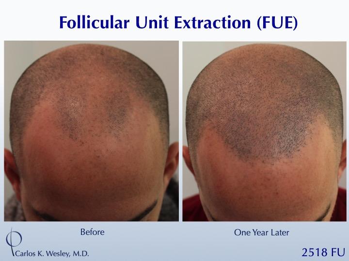Dr Carlos Wesley Hair Transplant4.jpeg