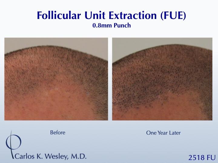 Dr Carlos Wesley Hair Transplant5.jpeg