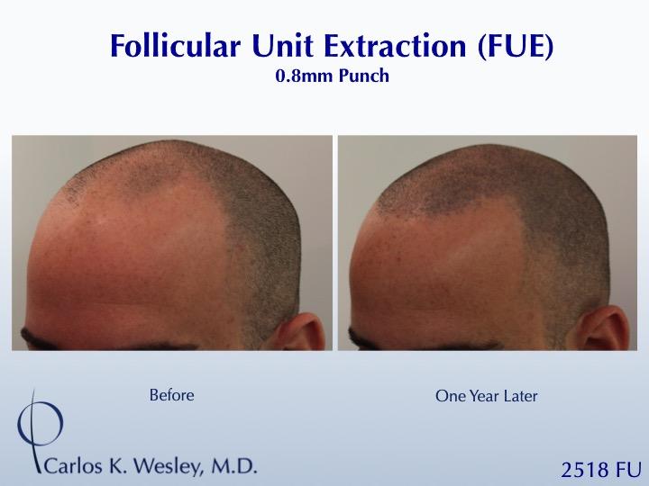 Dr Carlos Wesley Hair Transplant6.jpeg