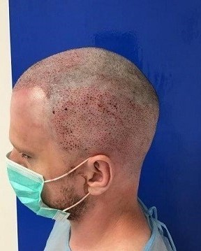 Dr. Christian Bisanga fue extractions.jpg