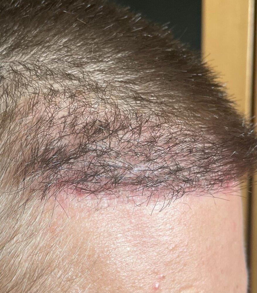 Dr. Cooley hair transplant3.jpeg
