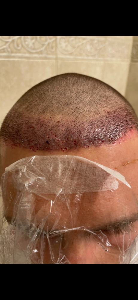 Dr Cooley Hair Transplant3.png