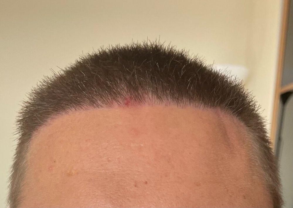 Dr. Cooley hair transplant5.jpeg