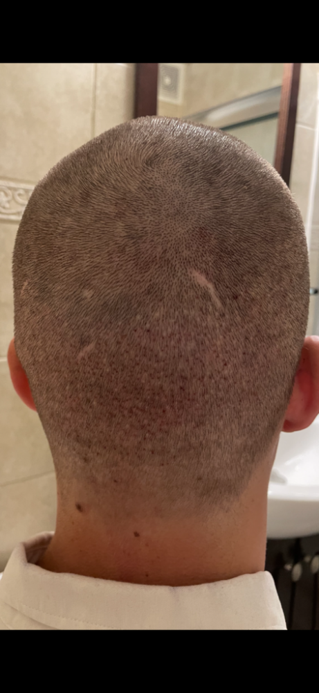 Dr Cooley Hair Transplant5.png