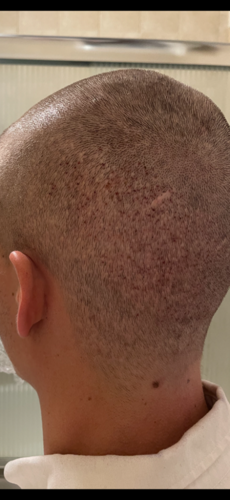 Dr Cooley Hair Transplant6.png