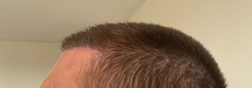 Dr. Cooley hair transplant7.jpeg
