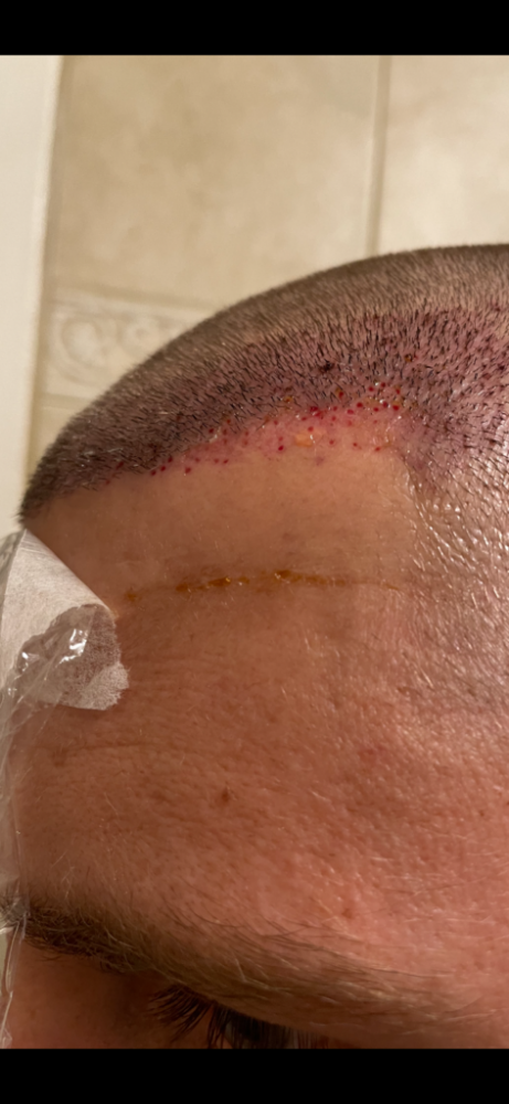 Dr Cooley Hair Transplant7.png