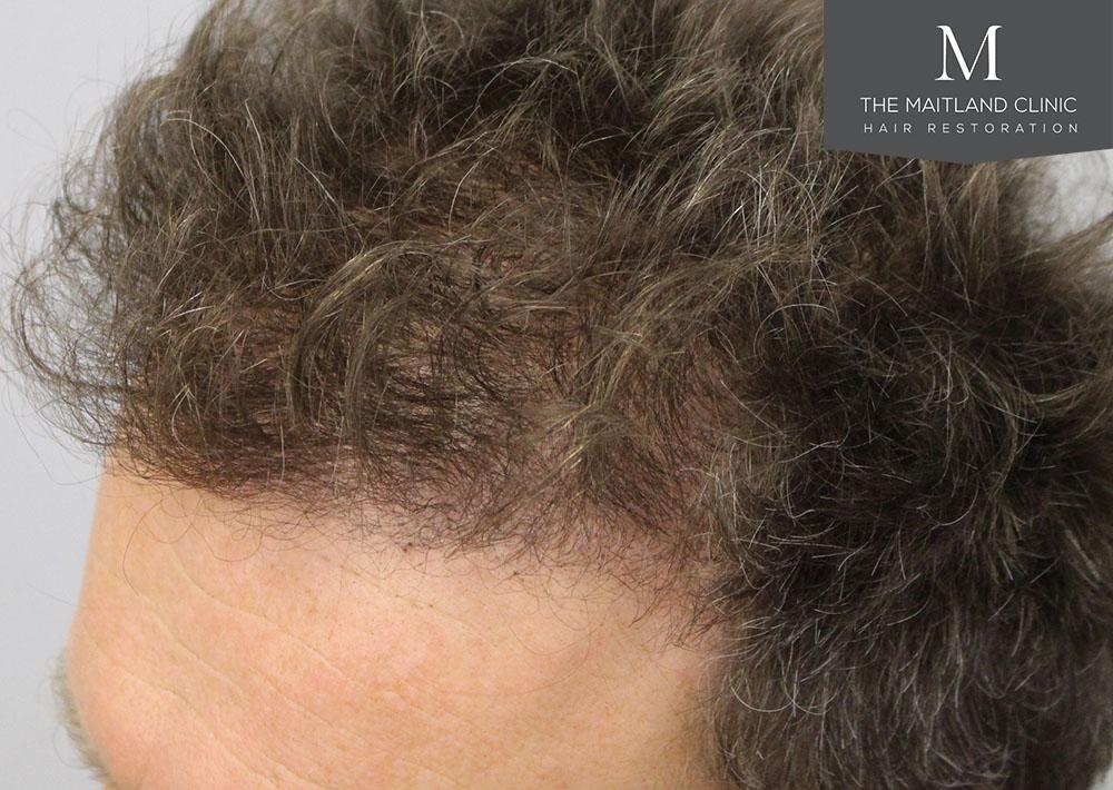 Dr. Edward Ball hair transplant result 10.jpg