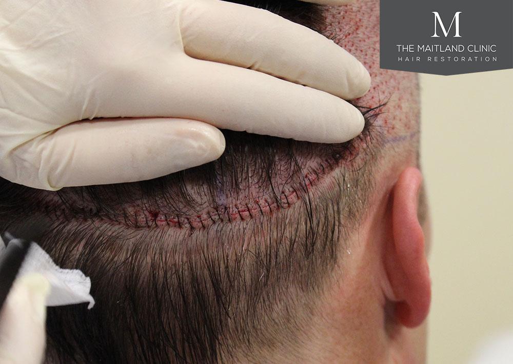 Dr. Edward Ball hair transplant result 12.jpg