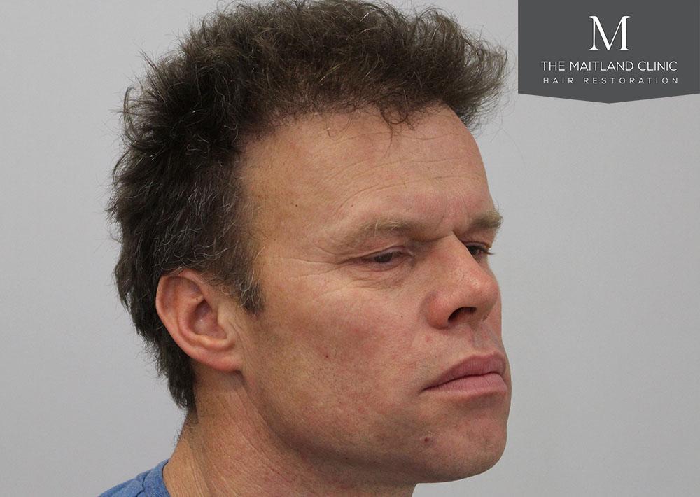 Dr. Edward Ball hair transplant result 2.jpg