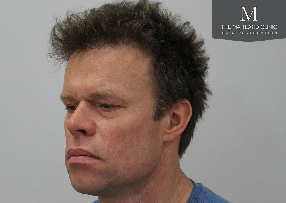 Dr. Edward Ball hair transplant result 4.jpg