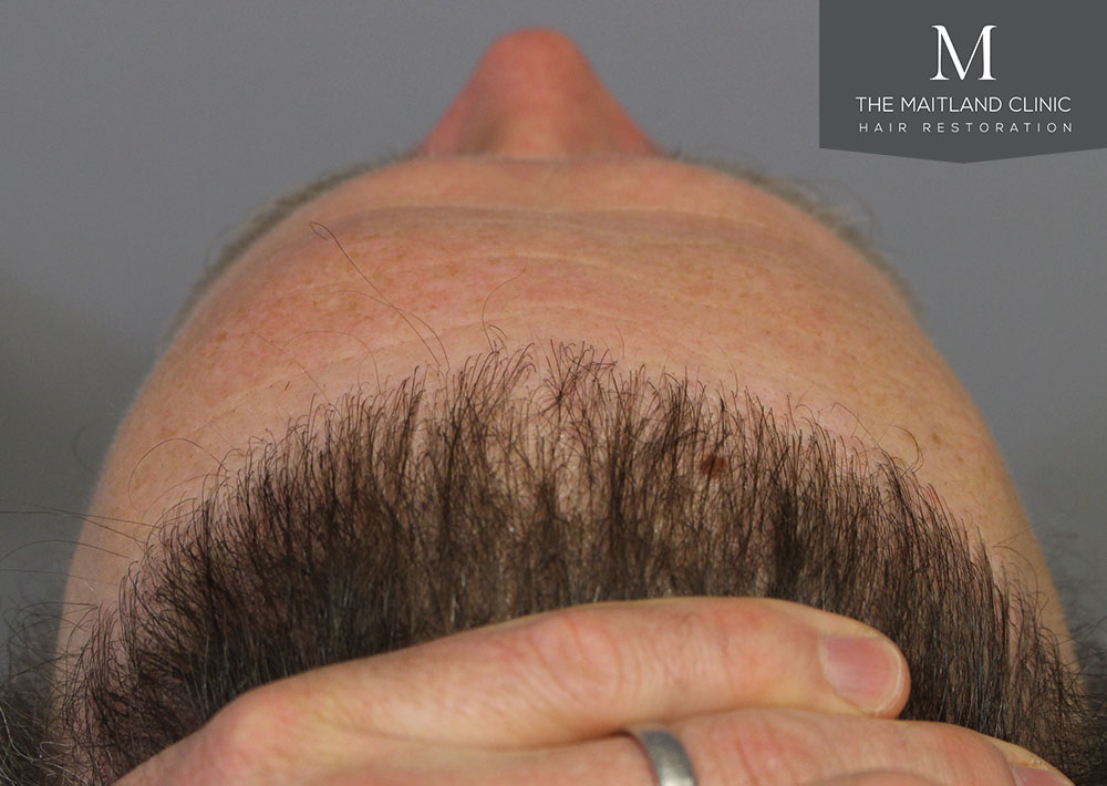 Dr. Edward Ball hair transplant result 7.jpg