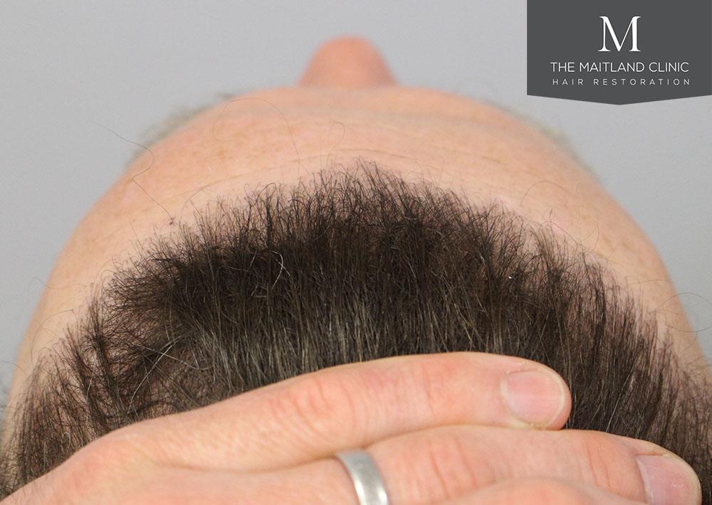 Dr. Edward Ball hair transplant result 8.jpg