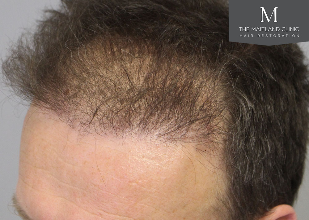 Dr. Edward Ball hair transplant result 9.jpg