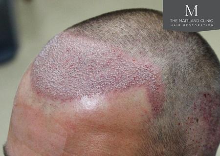 Dr Edward Ball hair transplant review.jpg
