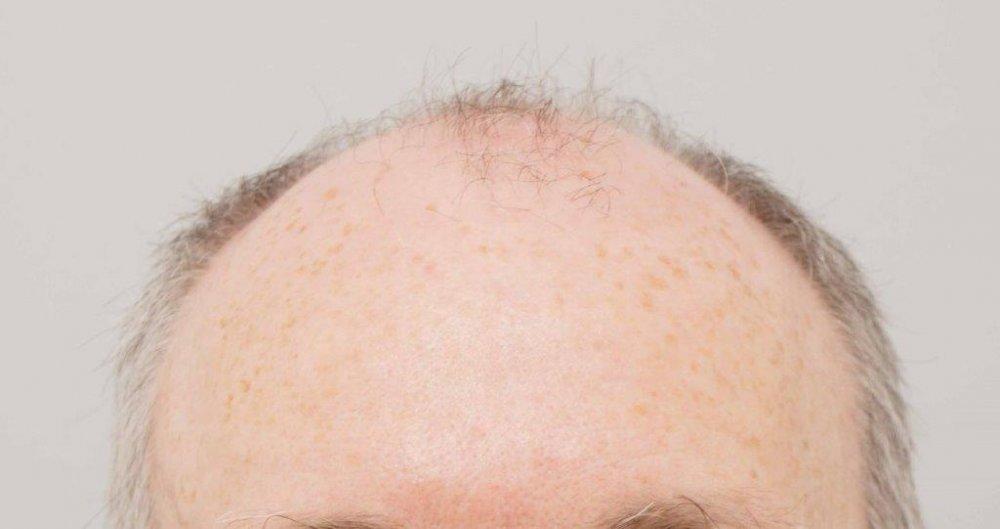 Dr Farjo FUE + FUT Hair Transplant1.jpg