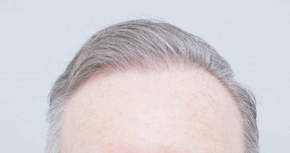 Dr Farjo FUE + FUT Hair Transplant5.jpg
