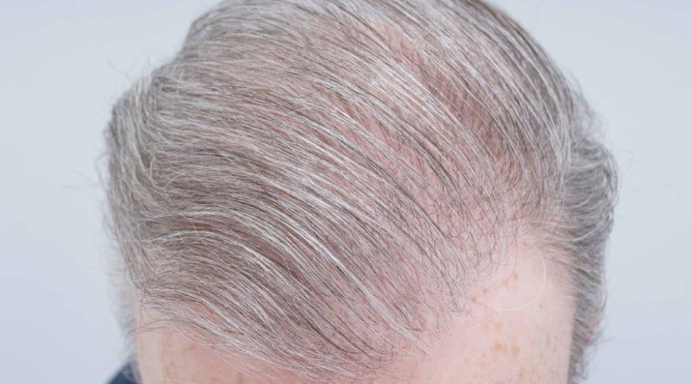 Dr Farjo FUE + FUT Hair Transplant6.jpg