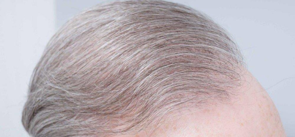 Dr Farjo FUE + FUT Hair Transplant7.jpg