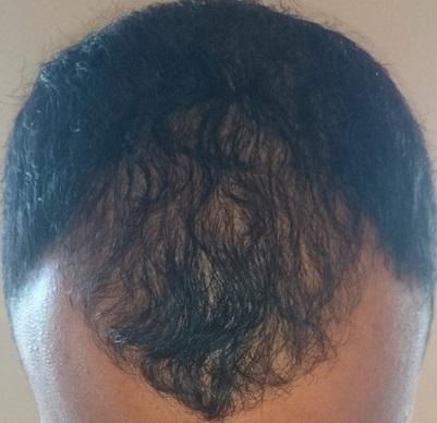 Dr Tayfun FUE  hair transplant.jpg