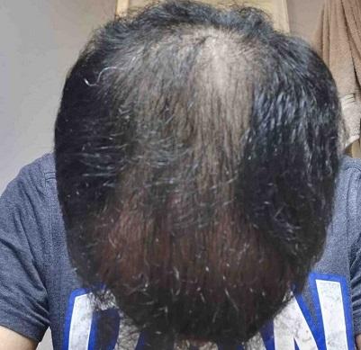 Dr Tayfun Hair transplant.jpg
