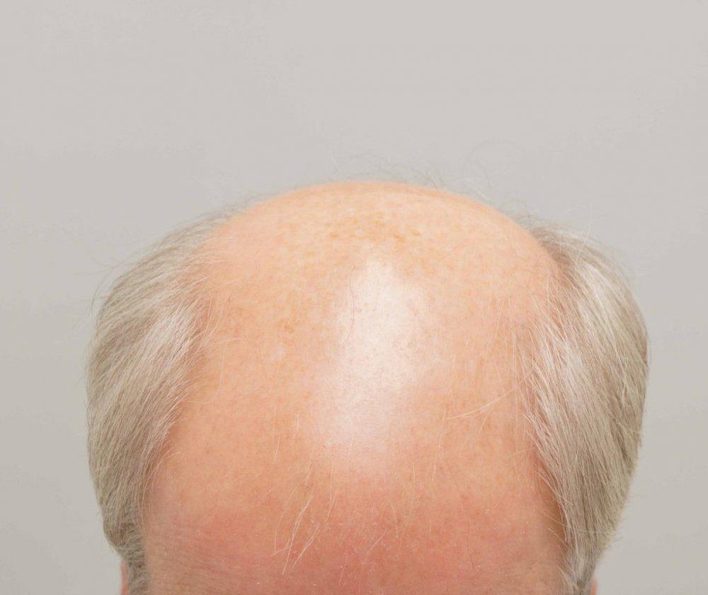 Farjo Hair Institute1.jpg