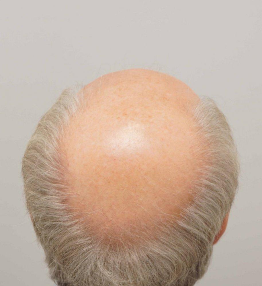 Farjo Hair Institute4.jpg