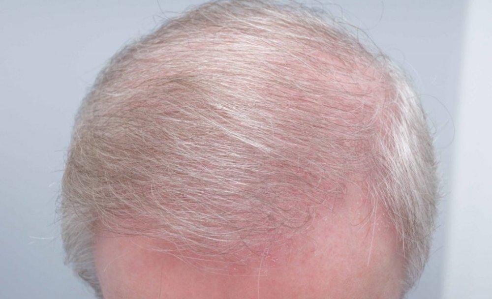 Farjo Hair Institute6.jpg