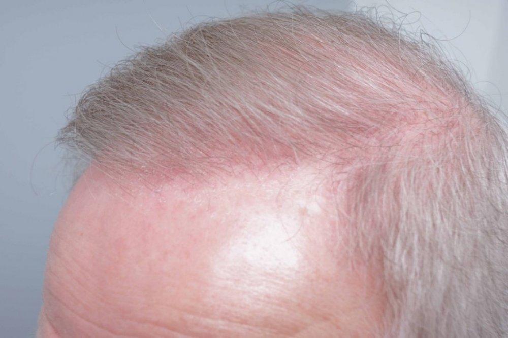 Farjo Hair Institute8.jpg