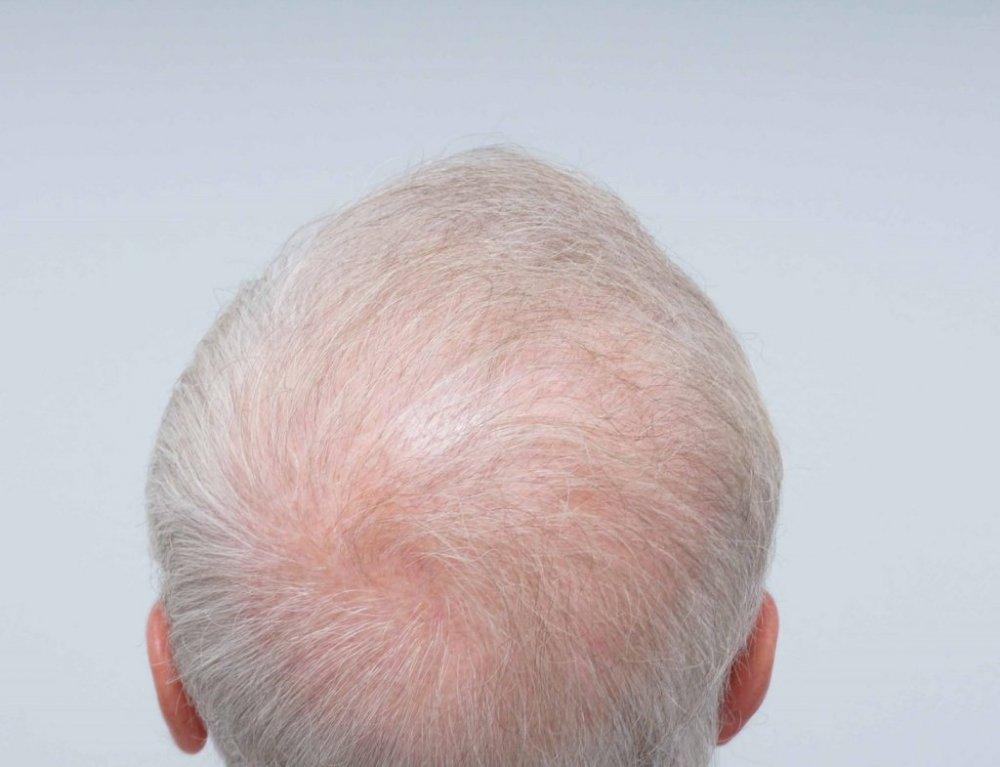 Farjo Hair Institute9.jpg