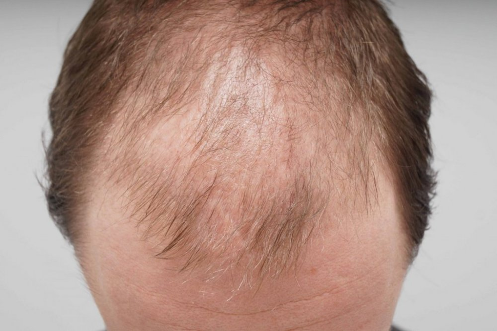 Farjo Hair Transplant 2.jpg
