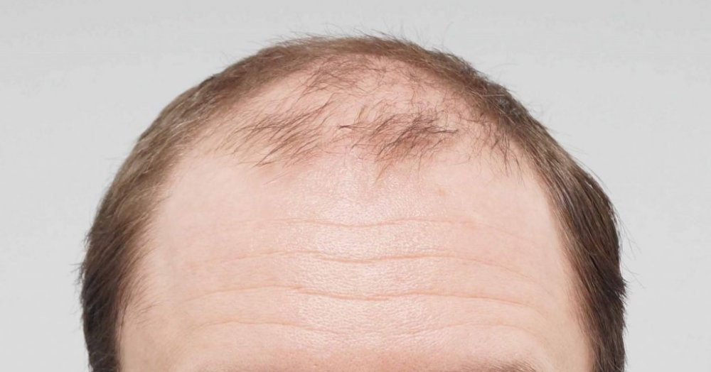 Farjo hair transplant1.jpg