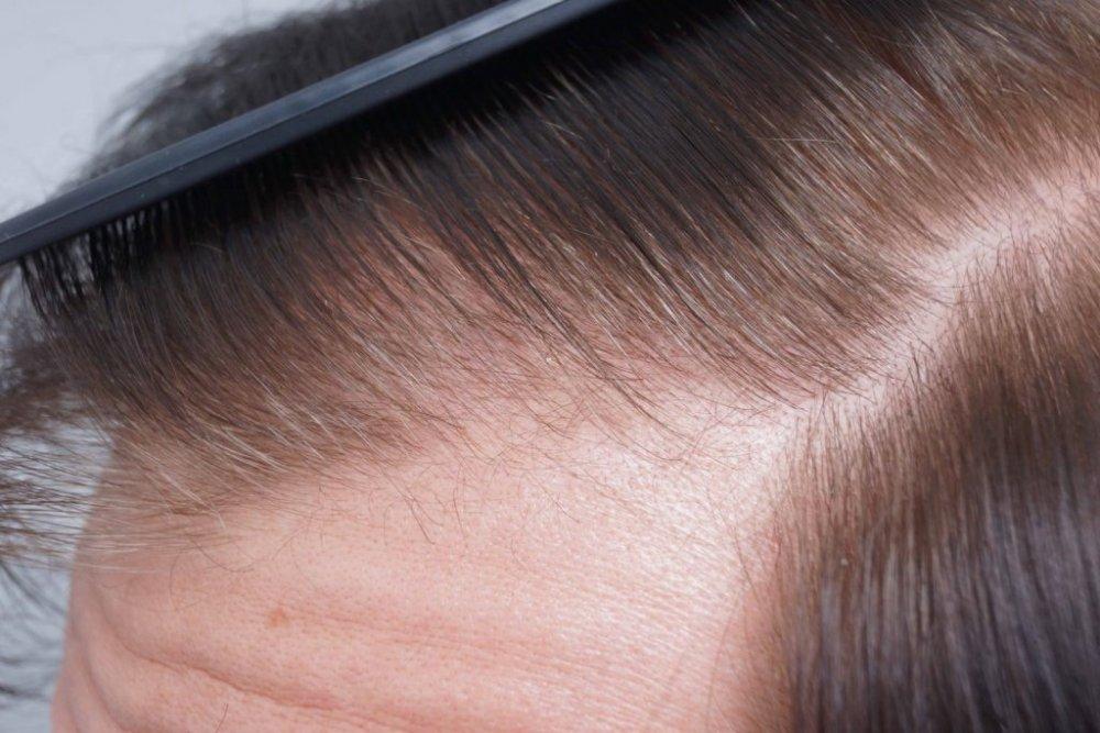 Farjo Hair Transplant10.jpg