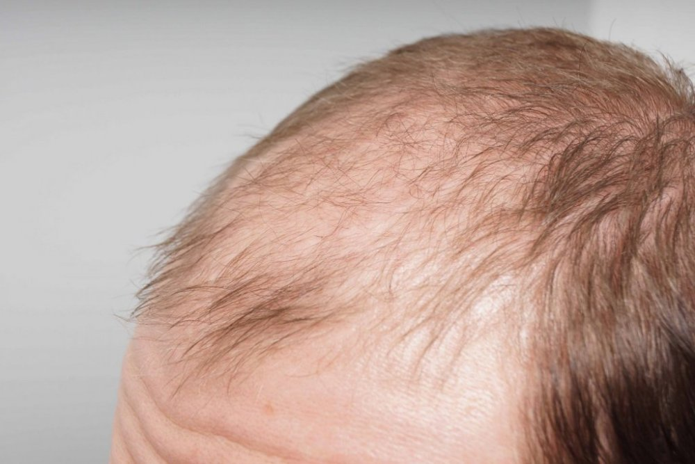 Farjo Hair Transplant4.jpg