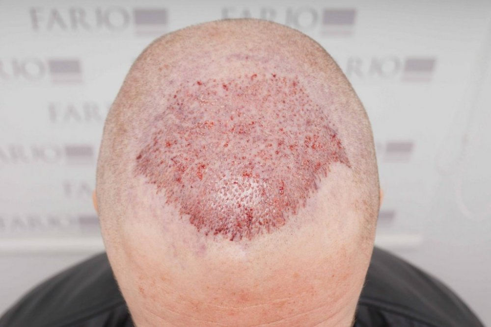 Farjo Hair Transplant5.jpg