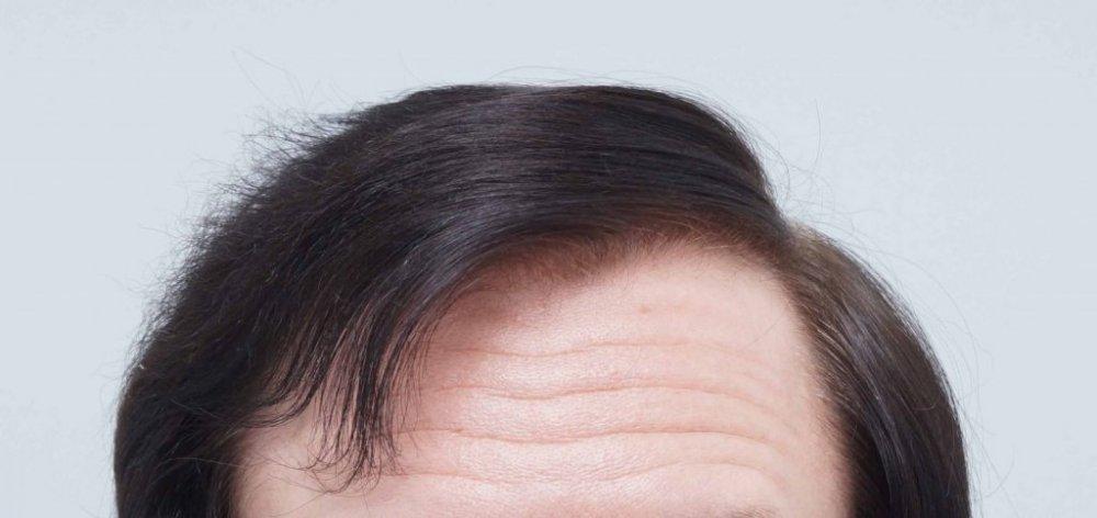 Farjo Hair Transplant6.jpg