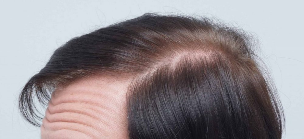 Farjo Hair Transplant9.jpg