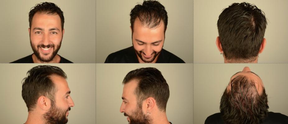 Fue hair transplant smed..jpg