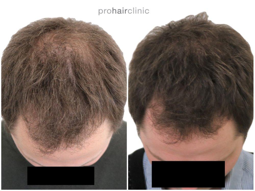hair boost top view prohairclinic logo.jpg