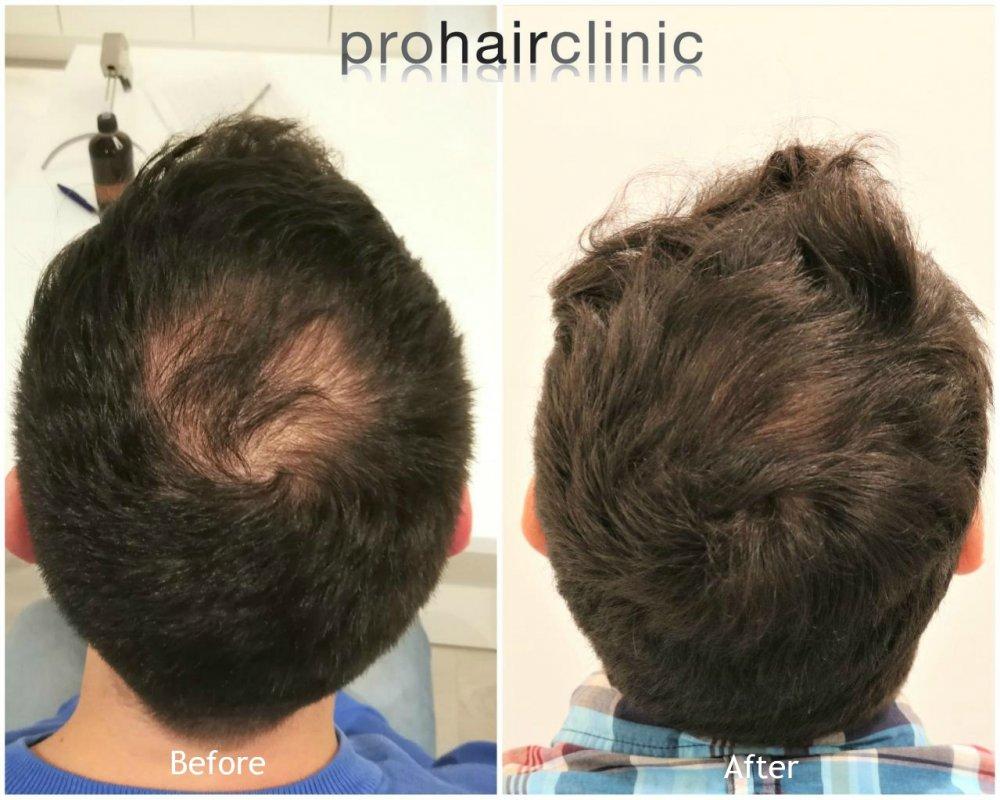 hair boost treatment result.jpg