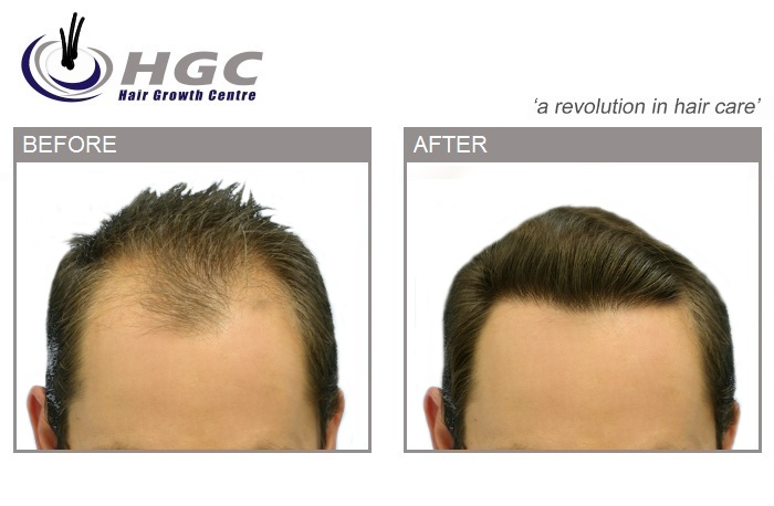 Hair Growth centre Stole this hair transplant picture.jpg