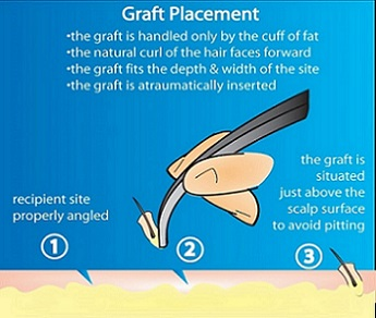 Hair transplant graft placement.jpg