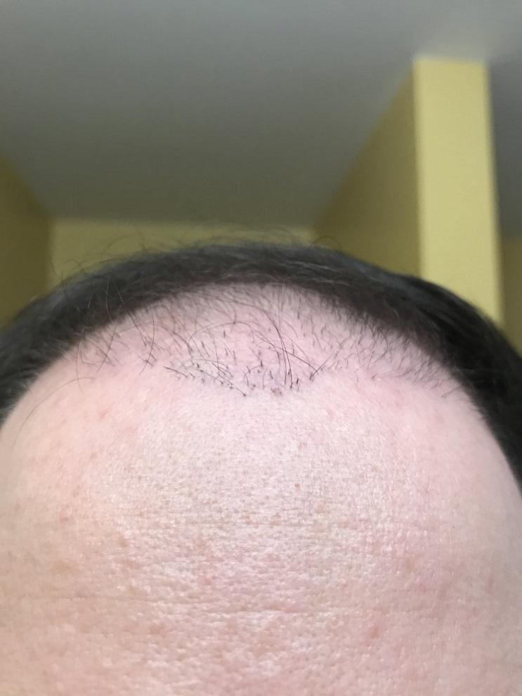 Hair Transplant Plugs.jpeg