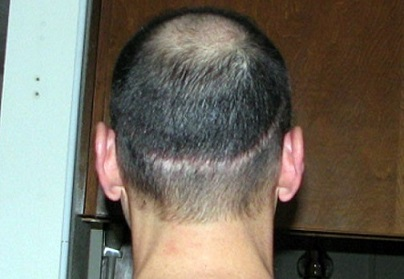 Hair transplant scar couvre.jpg