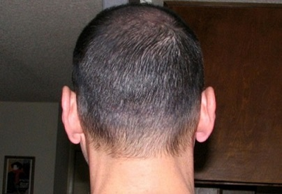 Hair transplant scar with couvre.jpg
