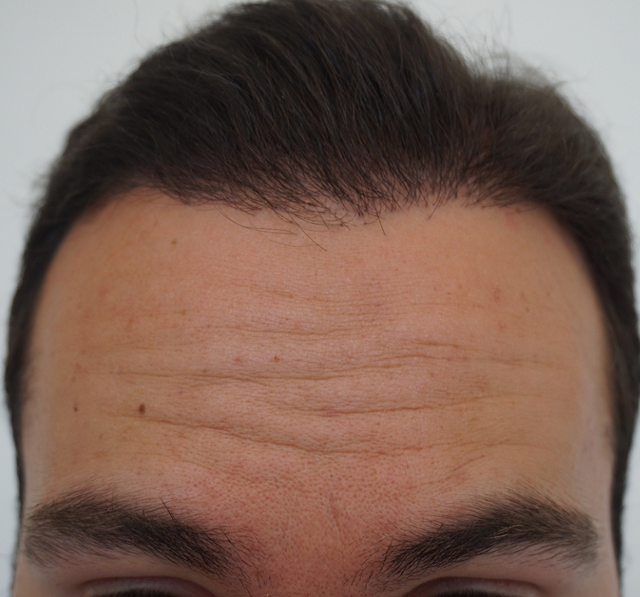 Hair transplant Turkey Dr Bicer 3.png
