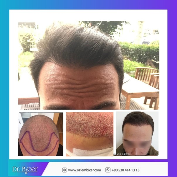 Hair transplant Turkey Dr Bicer 4.jpg