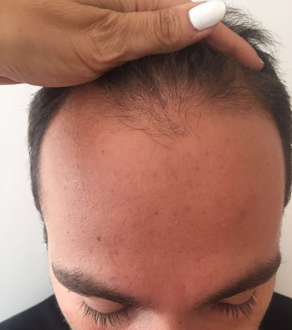 Hair transplant Turkey Dr Bicer.jpg