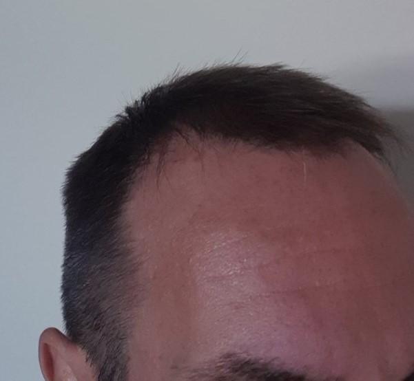 hair transplant with fine hair..jpg
